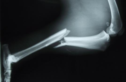 La fractura ósea