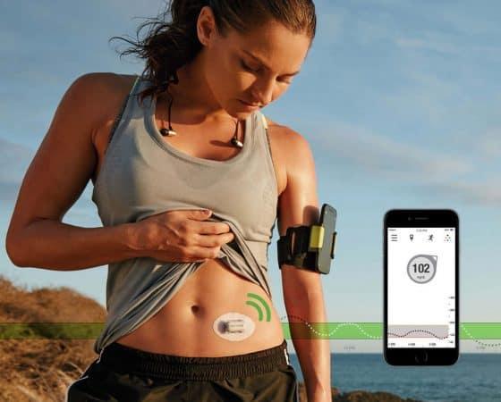 MCG Monitorización Continua de Glucosa