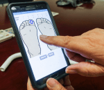sensor de pie diabético