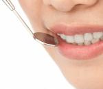 desarrollar periodontitis