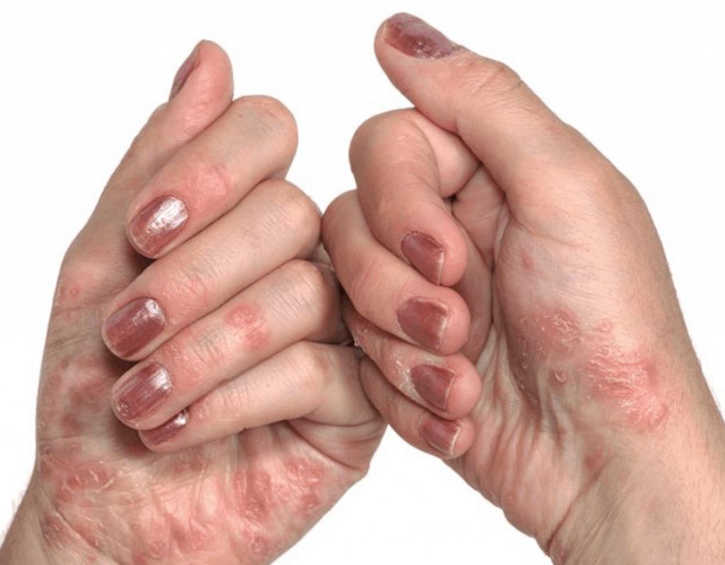 La psoriasis dispara el riesgo de diabetes tipo 2 según